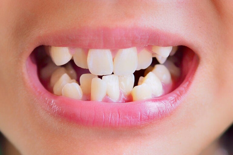 Maloclusión dental: causas, síntomas y tratamientos