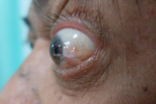 Enfermedad ocular tiroidea: síntomas, tratamientos y recomendaciones