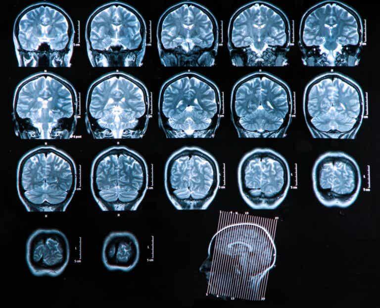Absceso cerebral: diagnóstico y tratamiento