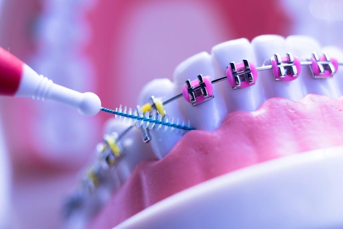 8 cuidados que toda persona con ortodoncia debe seguir