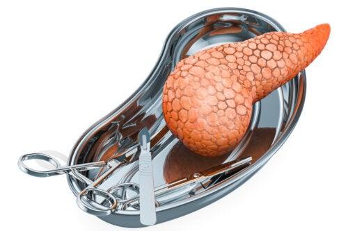 Trasplante de páncreas: ¿por qué se realiza y cuáles son sus riesgos?