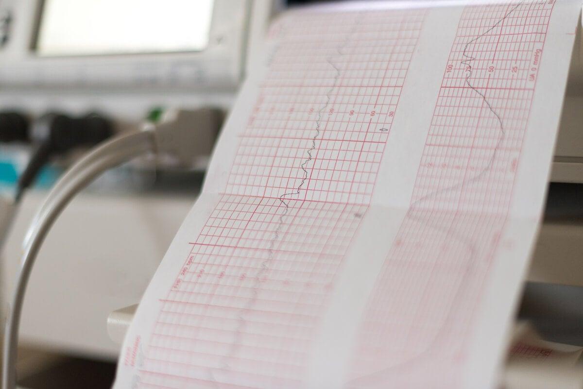 ¿Qué es el monitoreo fetal y para qué se realiza?