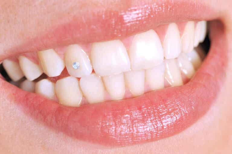 ¿Qué es el piercing dental y cómo es el procedimiento?