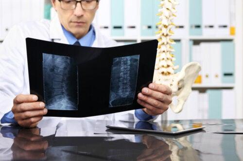 Laminectomía: ¿en qué consiste y cuáles son sus riesgos?