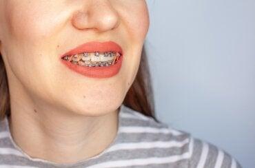 ¿Para qué se usan bandas elásticas en el tratamiento con brackets?