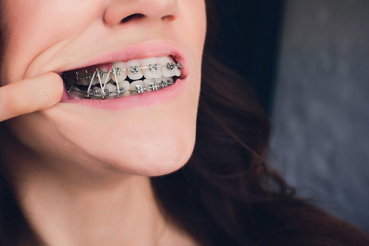 Sistemas de ortodoncia.