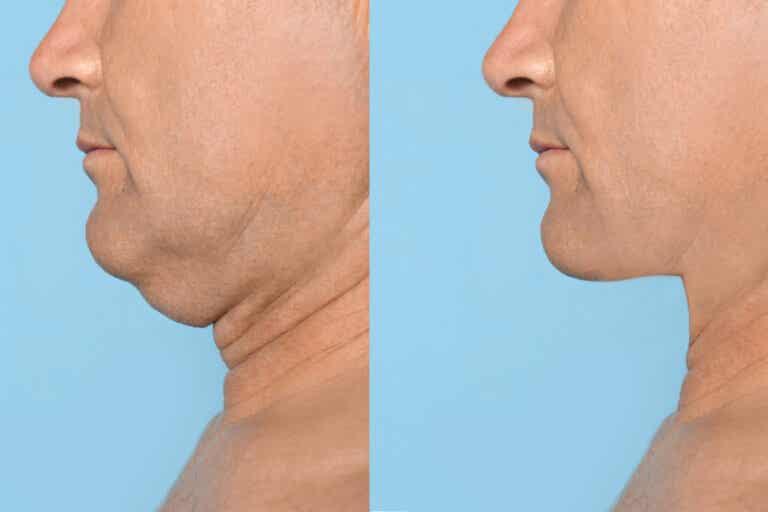 5 ejercicios para tener una mandíbula definida