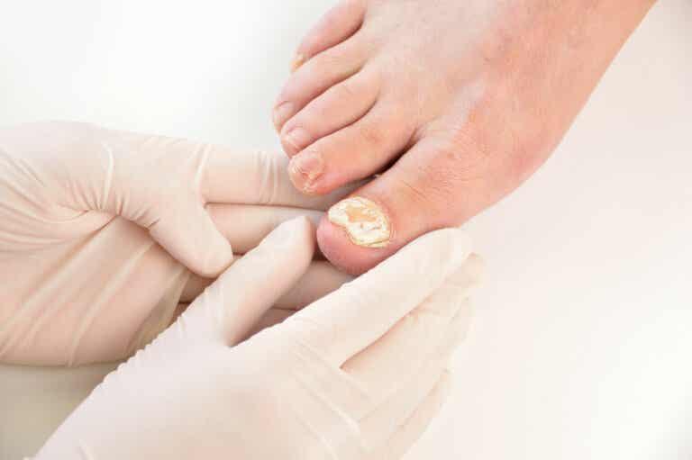 7 maneras de prevenir una infección por hongo en las uñas