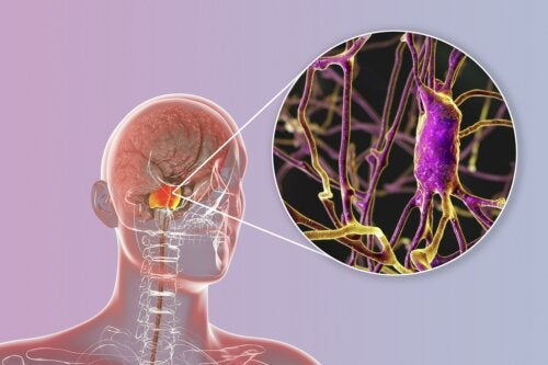 Linfoma del sistema nervioso central: ¿qué debes saber?