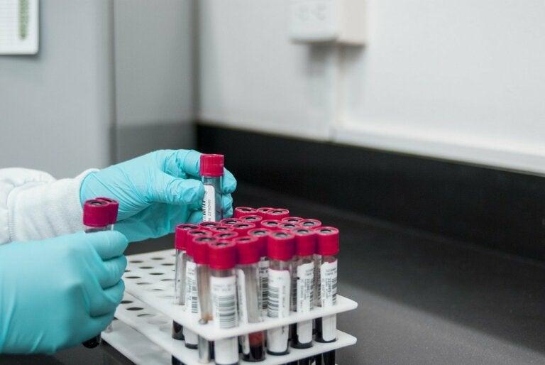 Prueba de reagina plasmática rápida para diagnóstico del sífilis