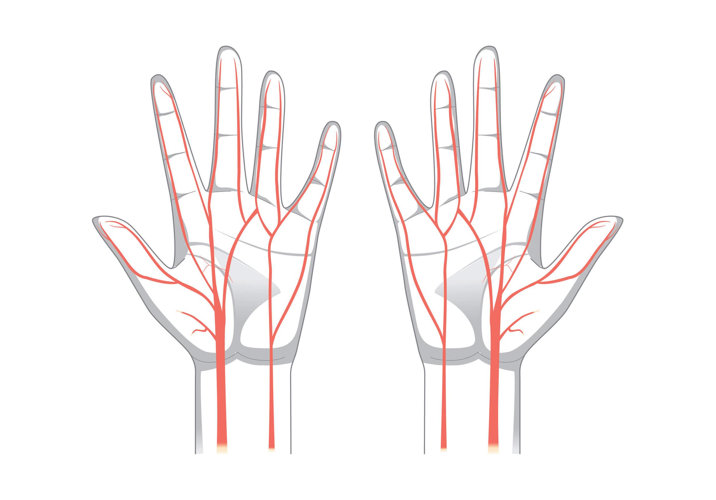 La punción y canulación arterial es una técnica sencilla.