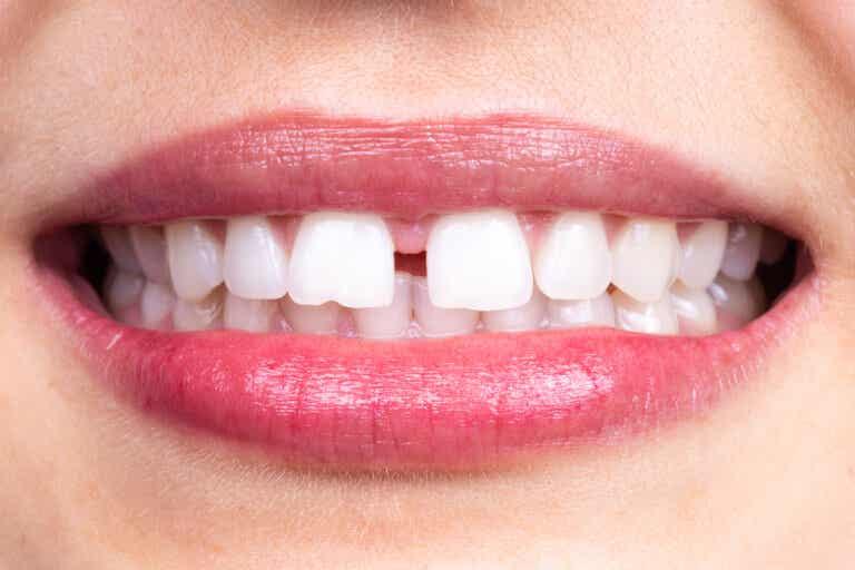 Diastema dental: ¿en qué consiste?