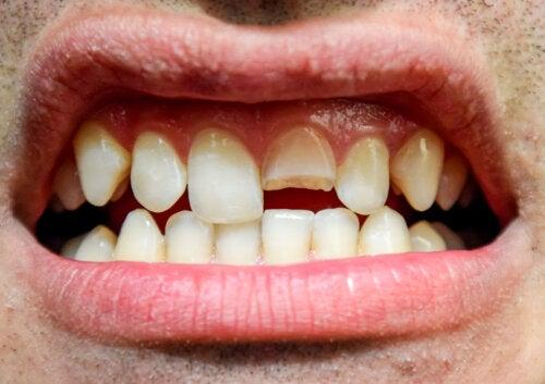 Traumatismo dental: ¿qué es y qué tipos existen?