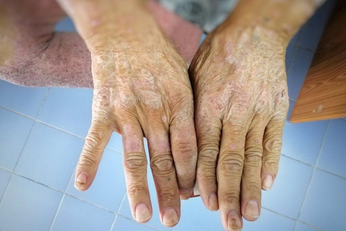 Día Mundial de la Esclerodermia: ¿cuál es su objetivo?