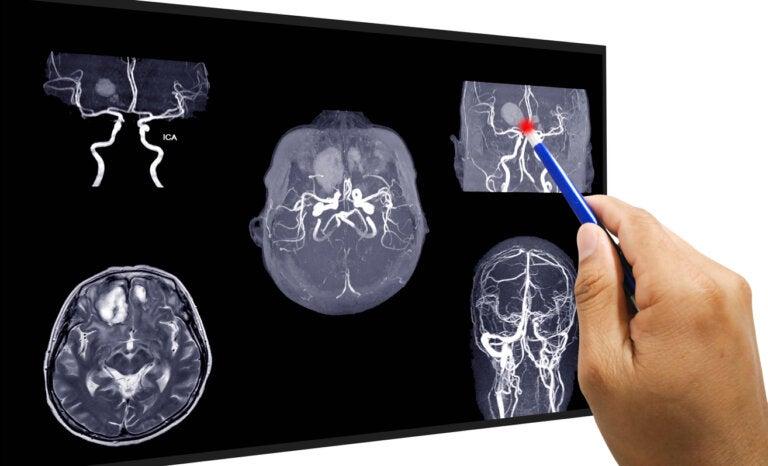 ¿Cómo se realiza la reparación de un aneurisma cerebral?