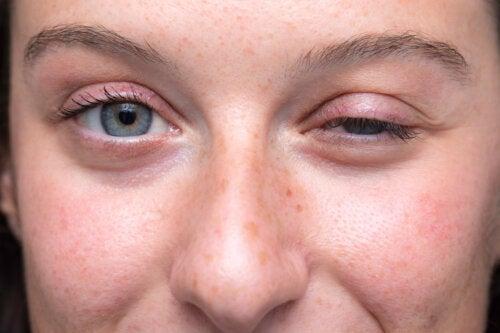 ¿Qué es una prueba de edrofonio y para qué se realiza?