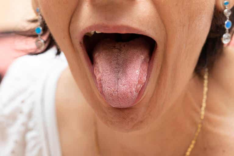Mucositis oral: causas, síntomas y prevención