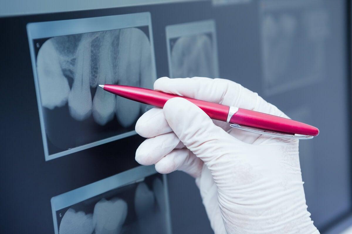 Radiografía dental y ortopantomografía.