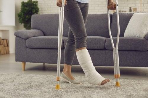 Yeso vs fibra de vidrio: ¿cuál es mejor para las fracturas?