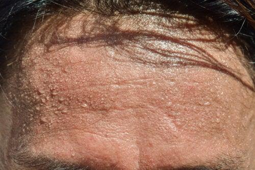 5 consejos para evitar el exceso de sudor en la cabeza