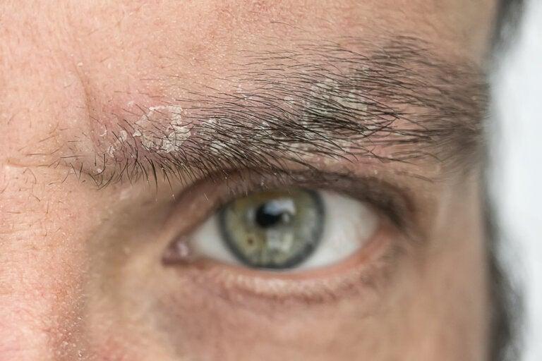 Caspa en las cejas: ¿por qué ocurre y cómo eliminarla?