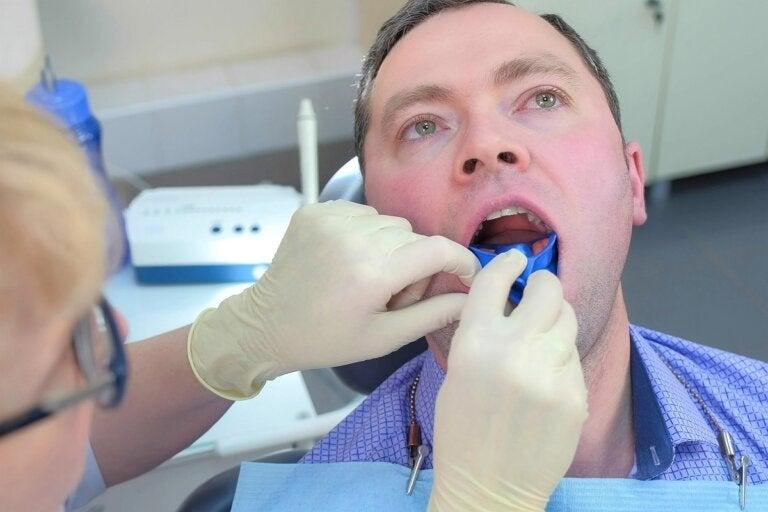 Flúor dental: ¿cómo ayuda a prevenir las caries?
