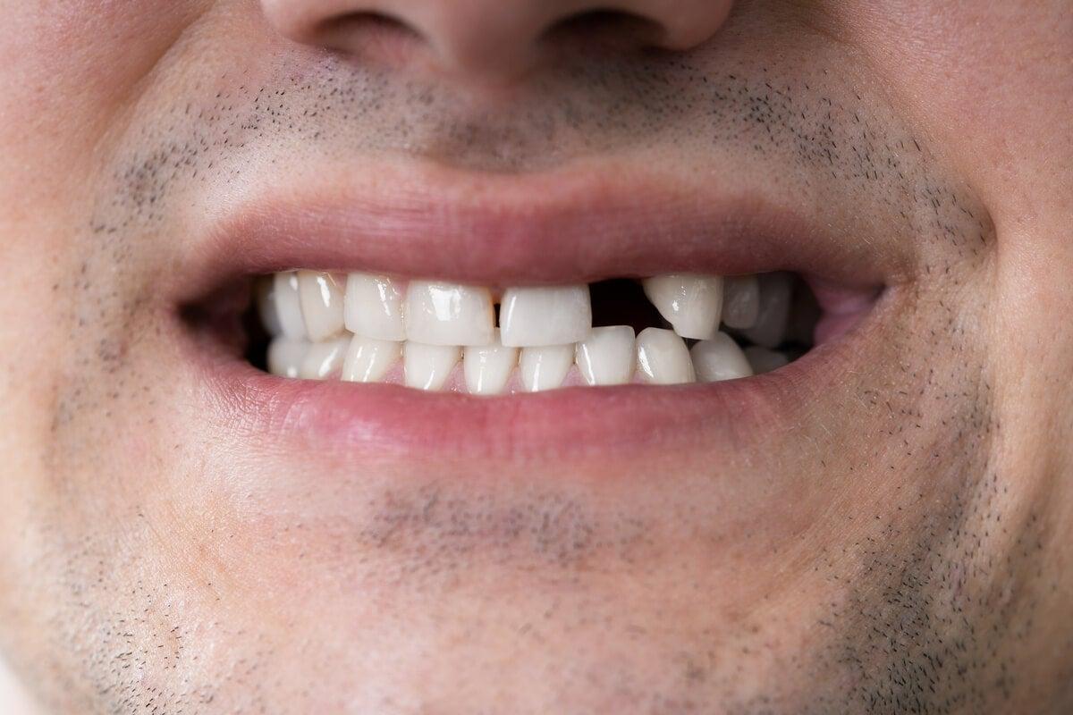 Dentadura con edentulismo.