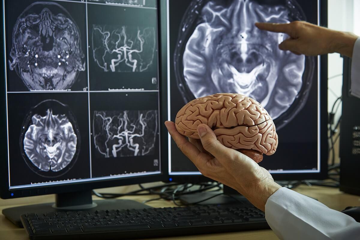 Daño cerebral registrado en tomografía.
