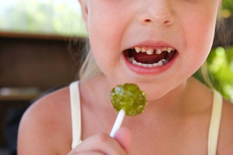 Caries dental en niños: ¿cómo prevenirla?