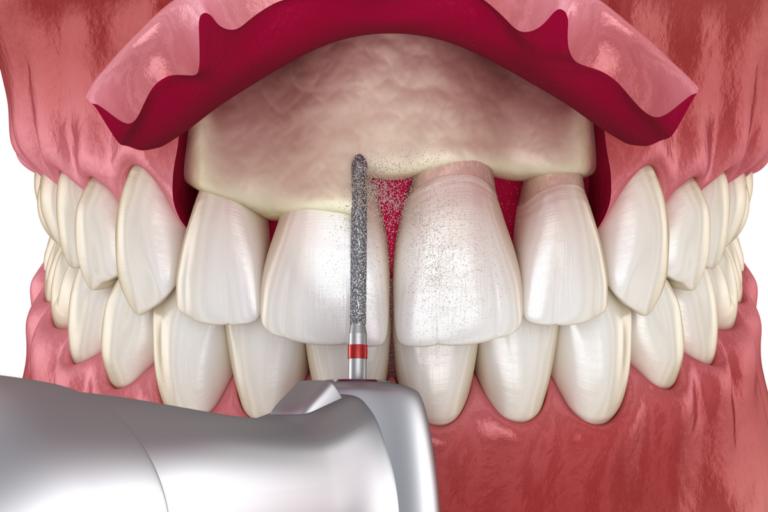 ¿Qué es una gingivectomía estética?
