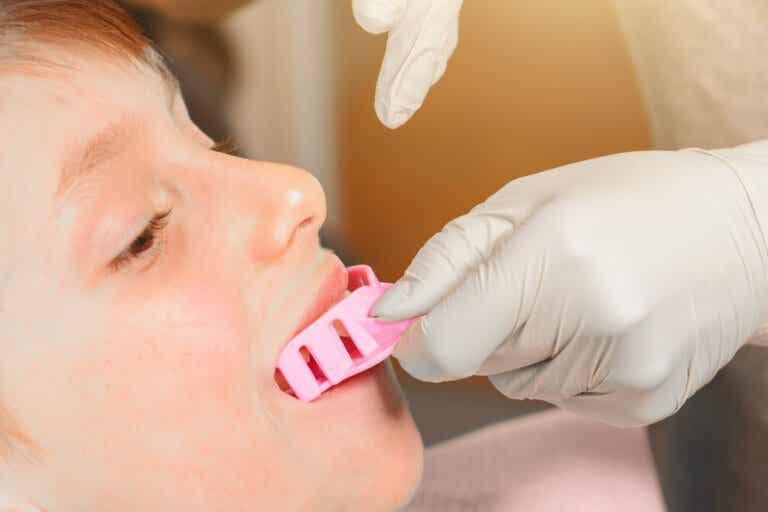 Myobrace: tratamiento de ortodoncia preventiva