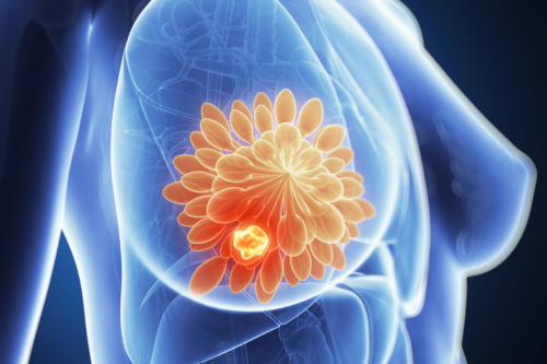 Contra el cáncer de mama, una nueva vacuna logró detener la enfermedad en una paciente