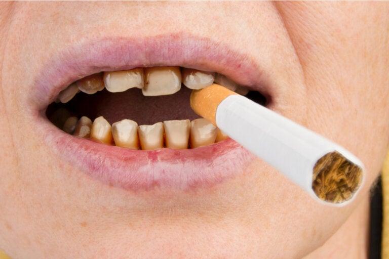 ¿Cómo afecta el tabaco la salud de los dientes?