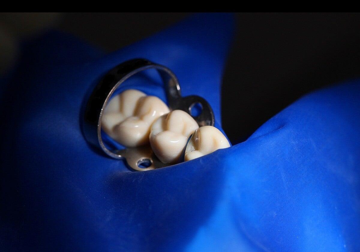 ¿Cómo se usan las grapas dentales?