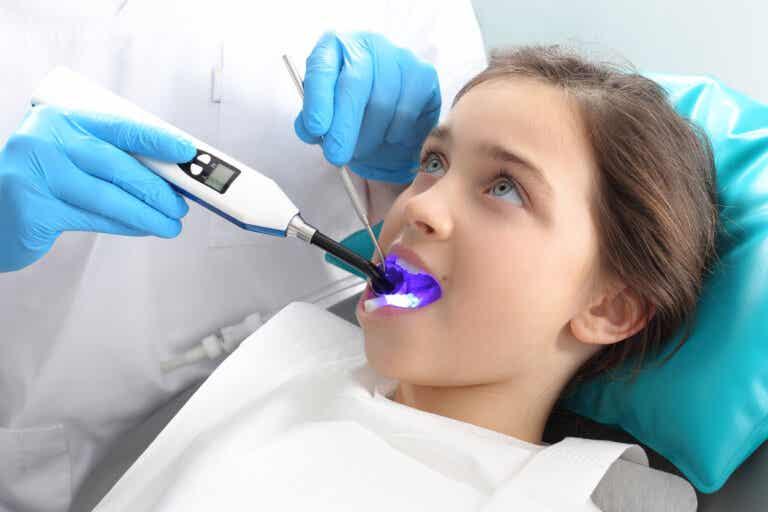 ¿Qué son y para qué sirven los selladores dentales?