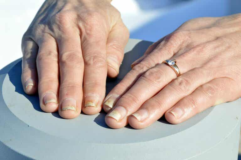 Cómo cuidar unas uñas con psoriasis