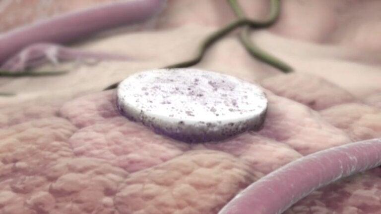 Vacuna creada en Harvard puede curar el cáncer de mama agresivo