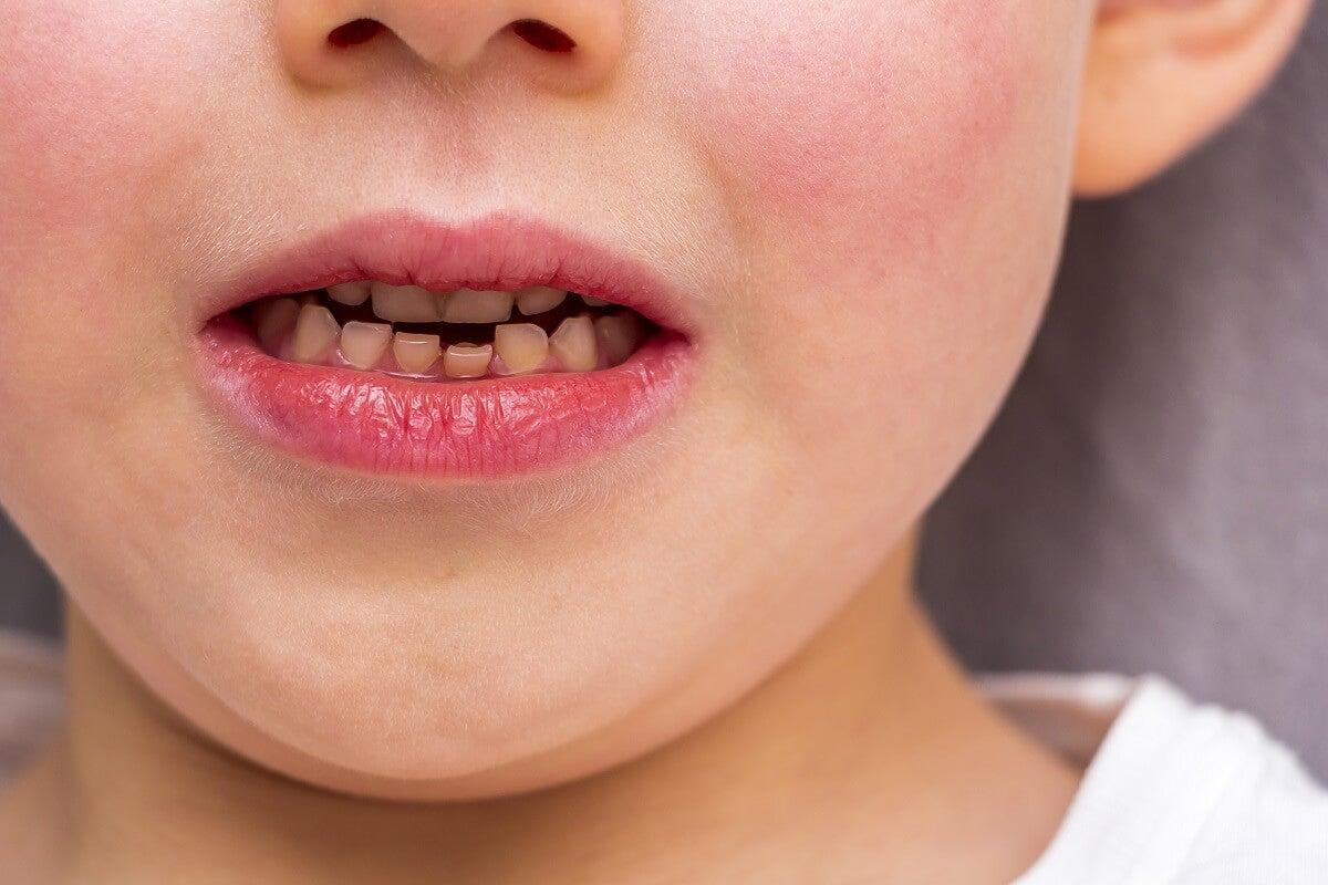 Cambio de dientes en los niños: todo lo que necesitas saber