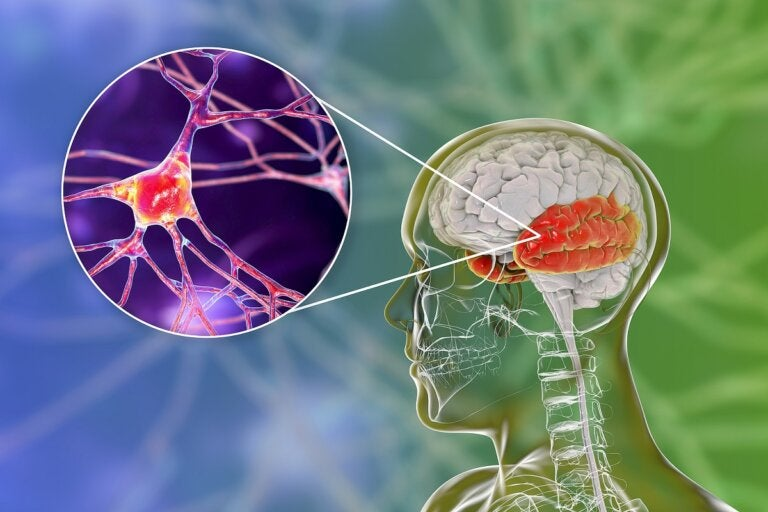 Síndrome de Wernicke-Korsakoff: una alteración mental por el consumo de alcohol