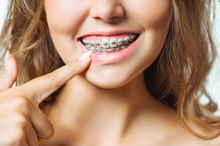 Sistema Damon: 6 ventajas de este tipo de ortodoncia